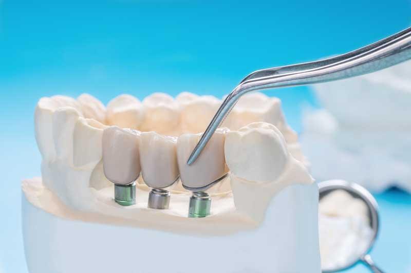 Scottsdale Dentist Rod Gore DDS