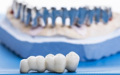 Dental Crown Replacement: When Do You Need this Procedure?