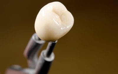 Looking for a Long-Term Solution for Missing or Broken Teeth? Dental Implants Might be for You
