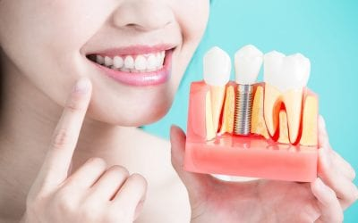 Dental Implant Care: 6 Maintenance Tips You Need to Know